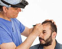 زراعة شعر الرأس
