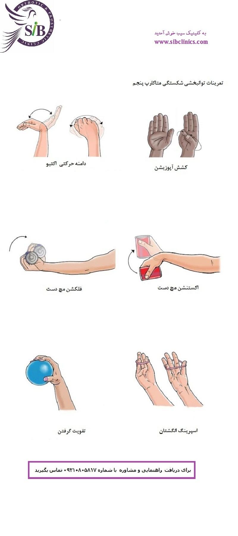 تمرینات توانبخشی اندام فوقانی26