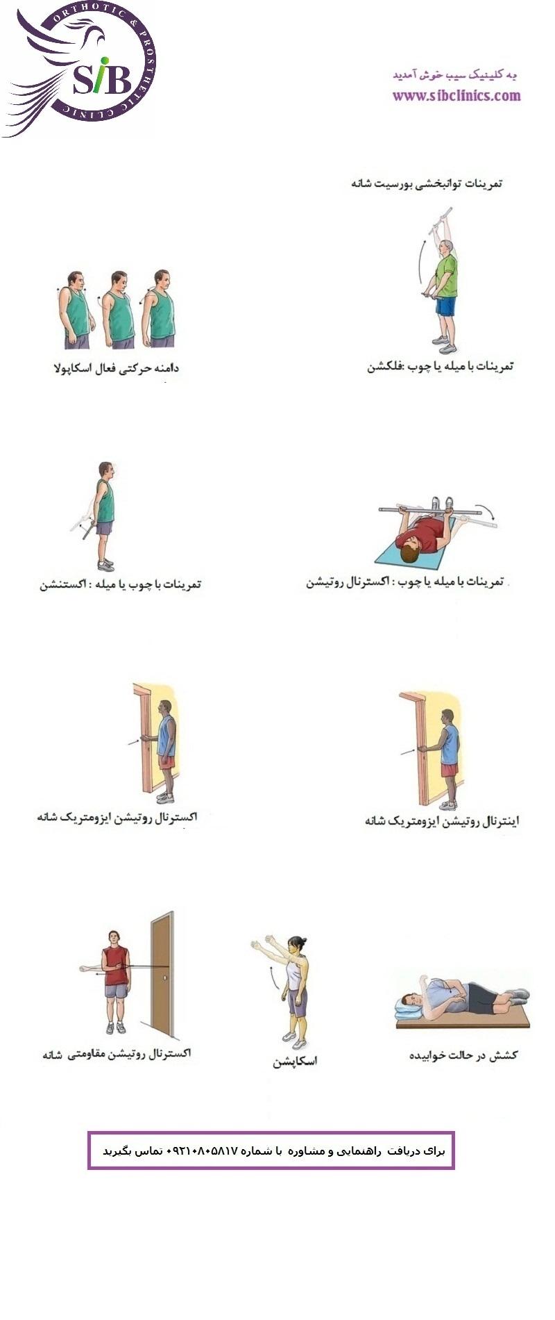 تمرینات توانبخشی  اندام فوقانی 25